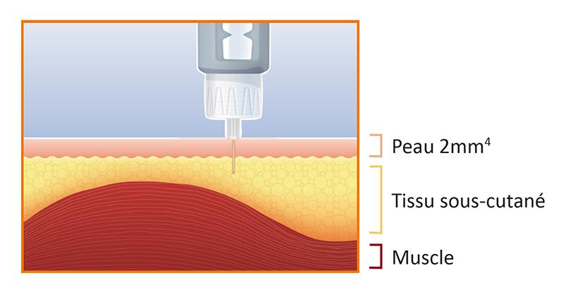 L'aiguille de 4mm est assez longue pour traverser la peau (2mm en moyenne4), et suffisamment courte pour ne pas toucher le muscle.