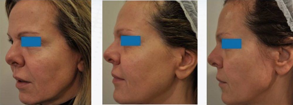 bio-modelage di visage