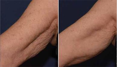 bio-modelage des bras