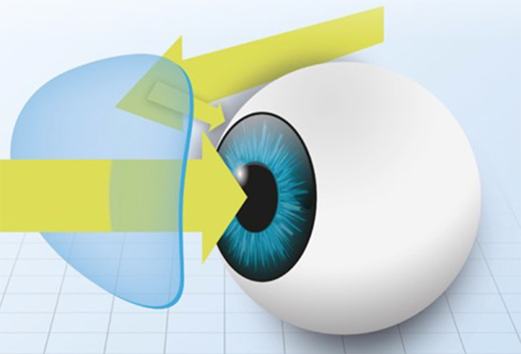 UV dans l'oeil