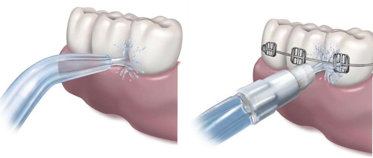 Jet Orthodontique