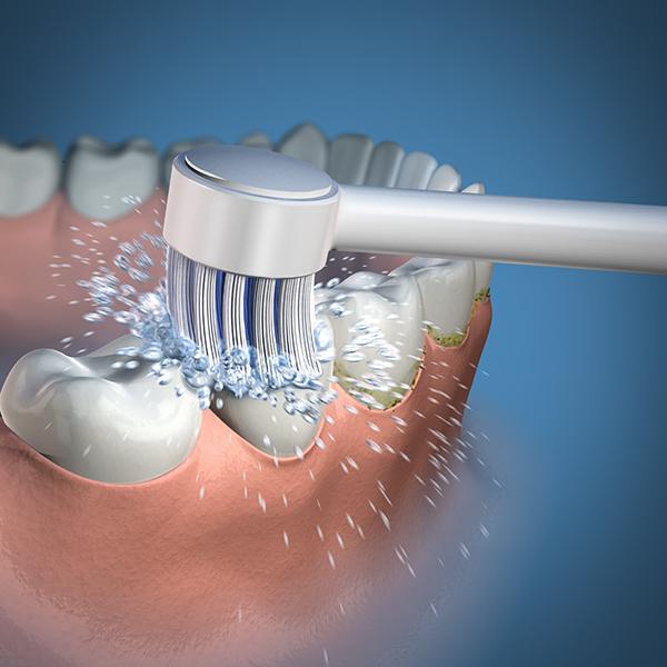 Waterpik : le complément idéale de l'hygiène bucco-dentaire