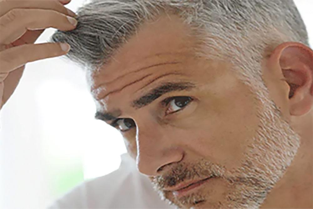 Apparition des cheveux blancs