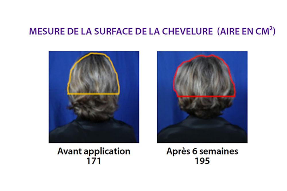 Cheveux - des tests précis pour comprendre le vieillissement capillaire