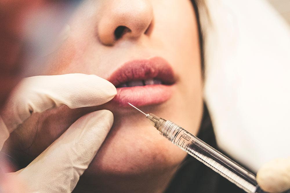 Injection acide hyluronique