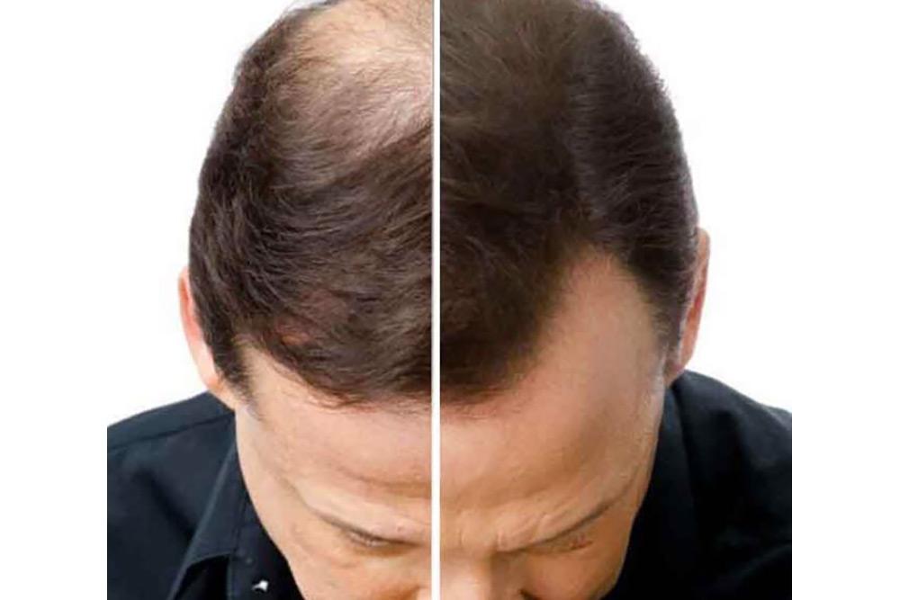 Avant et après le soin Natucain
