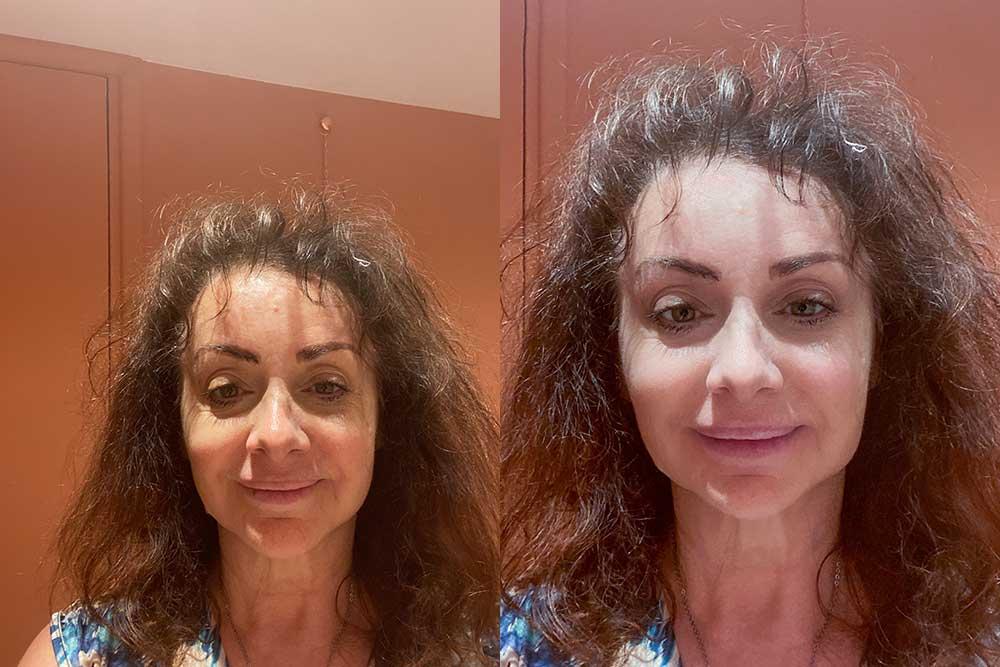 Avant et après Jil Aigrot au Salon deux jours après le soin