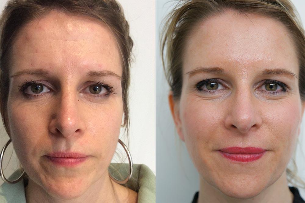 Avant/Après injection Acide Hyaluronique