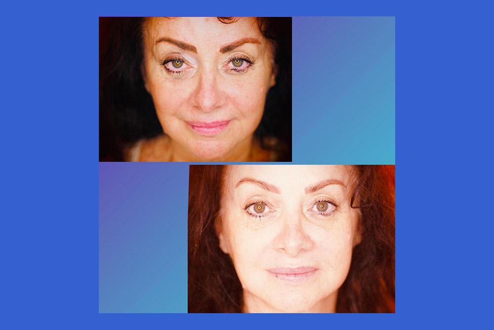 Avant et après Jil Aigrot au Salon juste après le soin