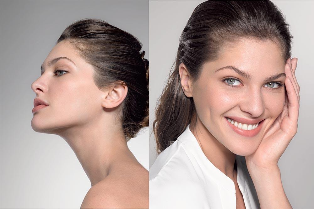 Teoxane - un acide hyaluronique qui respecte les expressions du visage
